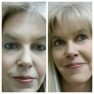 On the left: my freaky post-Botox forehead. On the right- same day, thank goodness for bangs!